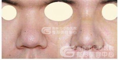 鼻头缩小手术方法有哪些?