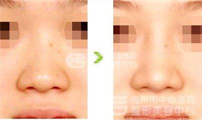 鼻头缩小术的术后注意事项有哪些?