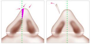 荆州歪鼻矫正整形方法_歪鼻矫正整形价格介绍