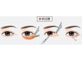 目前史上最为完整手术祛眼袋的介绍[费用、价格、禁忌、多图]