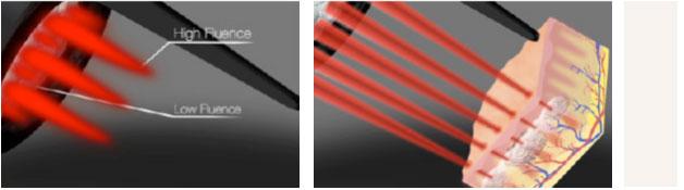 皮秒激光祛斑效果怎么样