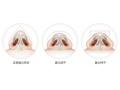 荆州医院整形垫鼻尖整形通常用什么材料的