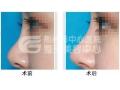 自体脂肪隆鼻术后护理
