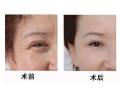 消除眉间皱纹提拉术效果如何