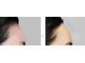 注射玻尿酸丰额头手术后有哪些注意事项