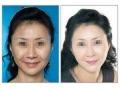 玻尿酸丰鼻唇沟可以保几年