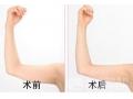瘦肩针是什么?全面大解析瘦肩针的原理副作用禁忌
