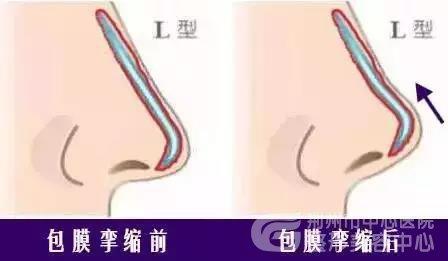 在别处做的假体隆鼻可以在荆州医院取出吗