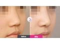 鼻小柱延长是如何做鼻子矫正