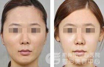 荆州医院整形科双下巴吸脂多少钱?