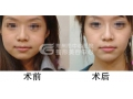 【董洁主任讲解】荆州医院瘦脸针费用是多少?