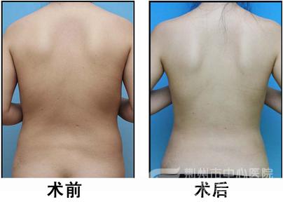 【董洁主任讲解】荆州医院背部吸脂费用是多少?