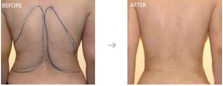 【荆医小知识】背部减肥最有效的方式是什么