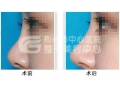 【董洁主任讲解】荆州医院整形科玻尿酸隆鼻的优势有哪些?