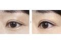 【董洁主任讲解】美瞳线和眼线的区别