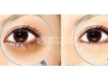 【董洁主任讲解】玻尿酸可以祛除黑眼圈吗?