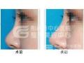 【董洁主任讲解】爱贝芙隆鼻和玻尿酸隆鼻哪个好?
