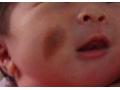 荆州医院激光治疗胎记需要住院吗?