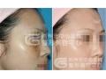 皮秒激光祛斑术后需要注意什么?