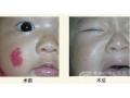 荆州医院治疗红色胎记吗?
