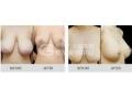 【主任讲解】乳房矫正术后会留疤吗?