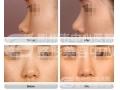 【董洁主任讲解】隆鼻手术是否会影响鼻子的正常功能?