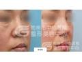 荆州医院专业隆鼻手术中那种方法好?