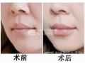 荆州医院整形科丰唇要多少钱呢?