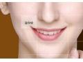 有哪些美容方法祛法令纹比较好呢