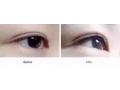 荆州医院纹美瞳线可以维持多久?