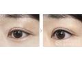 美瞳线这么靠近眼睛,会不会对眼睛有伤害?