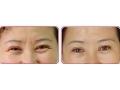【荆医小知识】如何快速有效的祛除眉间纹?