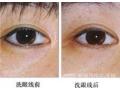 激光洗眼线会不会造成肌肤损伤?