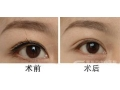 激光洗眼线是效果明显吗?