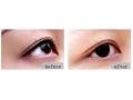 激光洗眼线术后会留疤吗?