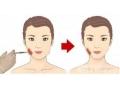 咬肌切除术后会重新长出来吗?
