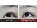 荆州医院纹眼线色素能维持多长时间?