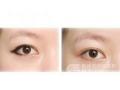荆州医院可以做眼线失败修复吗?