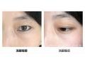 激光洗眼线术后要注意什么?