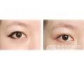 激光洗眼线术后需要多久才可以重新纹眼线?