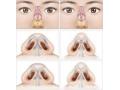 【荆医小课堂】为什么在做荆州医院鼻头缩小有年龄限制?