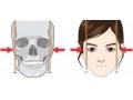 【荆医小课堂】瘦脸针和磨骨瘦脸手术那种更适合你?