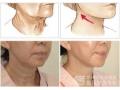 做完激光除皱术后怎样保护呢?