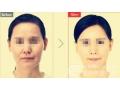 激光除皱治疗后多久可以见到疗效?