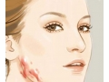 荆医专家介绍:关于疤痕修复整形