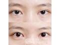 董洁主任做双眼皮修复效果怎么样?费用贵吗?