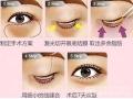 田方兴主任做祛眼袋效果怎么样?真人讲解祛眼袋手术过程