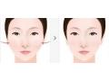 【荆医小课堂】改脸型术后需要注意什么?