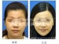 改脸型手术风险大吗?术后愈合情况怎么样?