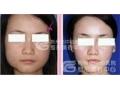 田方兴主任改脸型手术术后恢复情况如何?